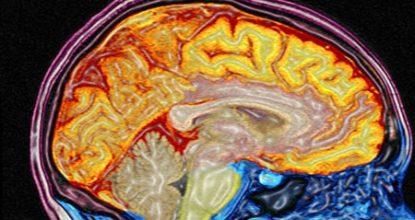 МРТ головного мозга и сосудов: результаты, противопоказания, оценка