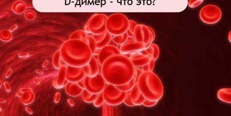 Д-димер: норма при беременности, повышен и понижен