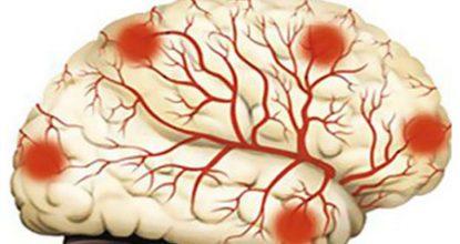 Дисциркуляторная энцефалопатия 1, 2 и 3 степени, симптомы и лечение, прогноз