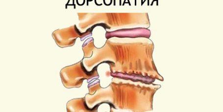 Дорсопатия шейного, пояснично-крестцового и грудного отделов позвоночника