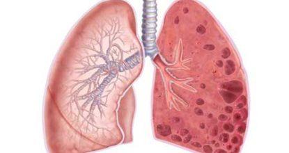 Эмфизема легких: симптомы, лечение, прогноз жизни