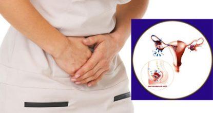 Эндометриоз — что это такое? Симптомы и лечение, препараты, прогноз