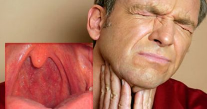 Фарингит у взрослых: симптомы, фото, эффективное лечение