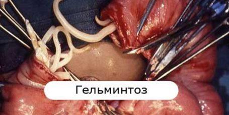 Гельминтоз: симптомы и лечение у детей и взрослых, профилактика гельминтозов