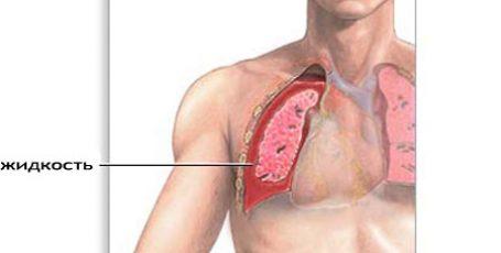 Гидроторакс, что это такое? Причины, признаки и лечение гидроторакса легких