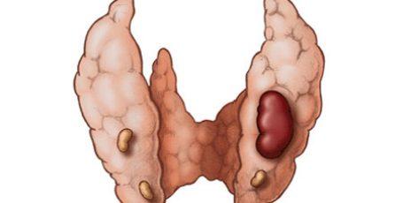 Гиперпаратиреоз первичный и вторичный: симптомы и лечение