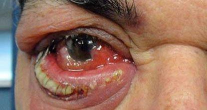 Гнойное воспаление: формы, осложнения, лечение и антибиотики