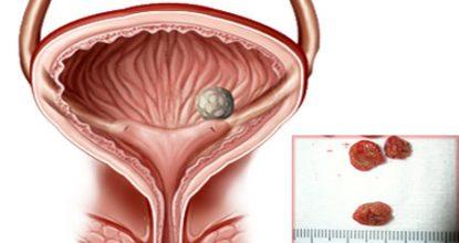 Камни в мочевом пузыре: причины, симптомы и лечение