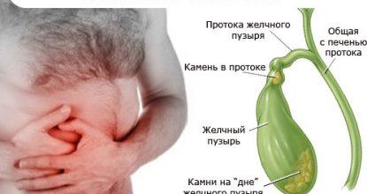 Камни в желчном пузыре: симптомы и лечение без операции