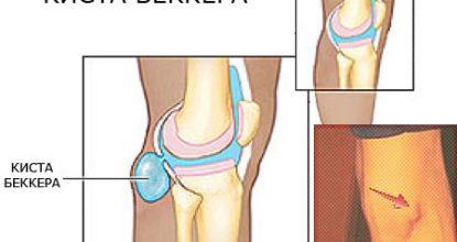 Киста Беккера под коленом, что это и как лечить?