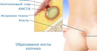 Киста копчика: симптомы, фото, методы лечения и операция