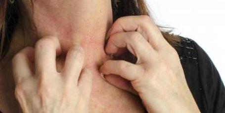 Чесотка у взрослых: симптомы, первые признаки, лечение