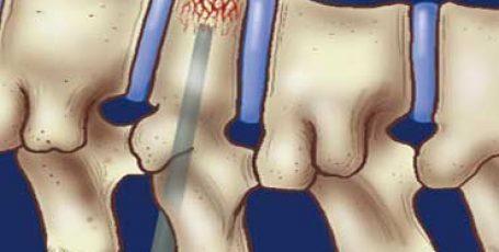 Гемангиома позвонка (позвоночника): симптомы и лечение, опасность, причины