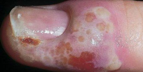 Панариций пальца на руке и ноге: лечение, препараты, народные методы