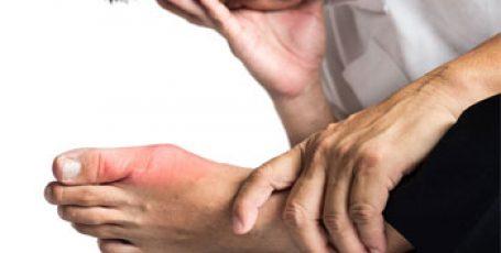 Подагра на большом пальце ноги — симптомы, лечение, диета, фото