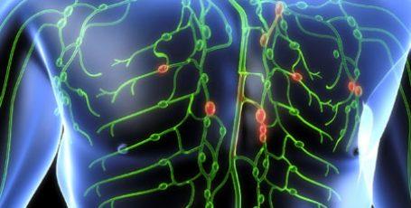 Лимфогранулематоз: причины, симптомы и лечение, стадии болезни