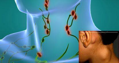 Лимфома Ходжкина — симптомы и лечение, степени, прогноз жизни