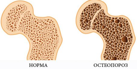 Остеопороз, что это? Признаки, симптомы и лечение, анализы