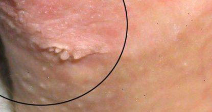 Остроконечные кондиломы у женщин: симптомы, лечение, диагностика