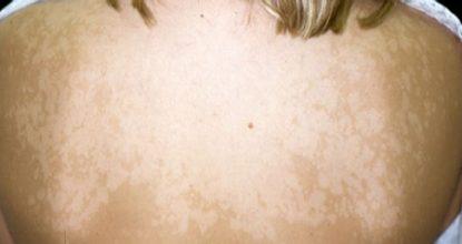 Отрубевидный лишай у человека: фото, симптомы и лечение, препараты