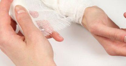 Ушиб руки, что делать? Первая помощь, симптоматика, отличие от перелома