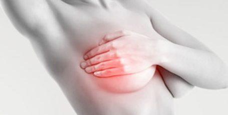 Мастопатия молочной железы: лечение, фото, признаки и симптомы