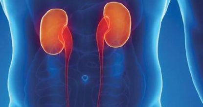 Почечная колика у женщин: причины, симптомы и лечение, неотложная помощь
