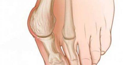 Болит косточка на ноге около большого пальца