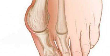 Стадии опухания косточки на ноге