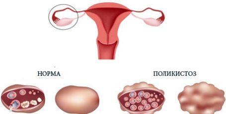 Поликистоз яичников: причины, симптомы и лечение