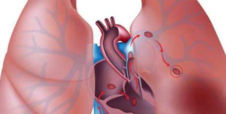 Тромбоэмболия легочной артерии: причины, симптомы, диагностика и лечение