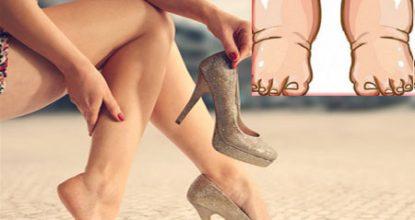 Причины отеков ног у женщин, что делать и как лечить?