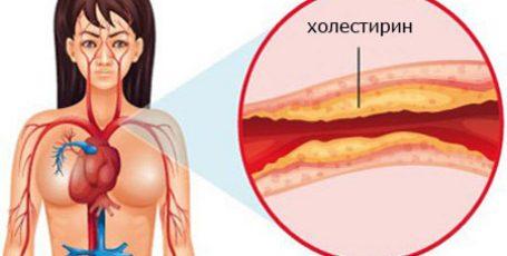 Холестериновые бляшки: симптомы и лечение, причины, профилактика