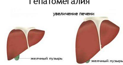 Гепатомегалия, что это такое? Признаки изменения печени, лечение и прогноз
