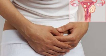 Фибромиома матки: симптомы и признаки, лечение, беременность