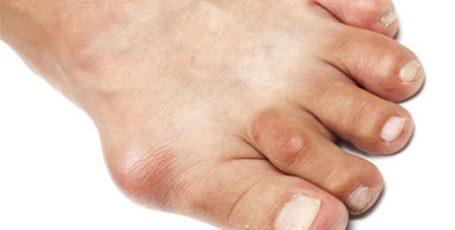 Подагра: признаки и лечение, питание и причины возникновения