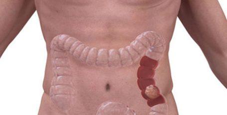 Рак кишечника: признаки и симптомы, стадии, лечение