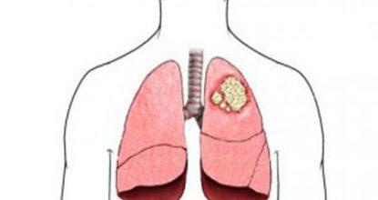 Рак легких: симптомы и признаки, степени рака, лечение и прогноз жизни