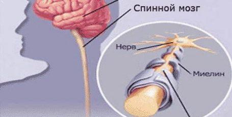 Рассеянный склероз, что это такое? Симптомы и лечение