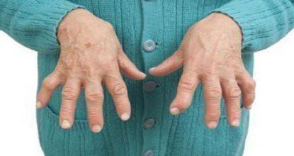 Ревматоидный артрит пальцев рук: причины, симптомы и лечение