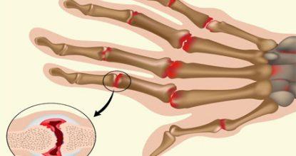 Ревматоидный полиартрит: симптомы и лечение, осложнения