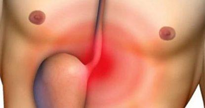 Рефлюкс-эзофагит: симптомы и лечение, диета, прогноз