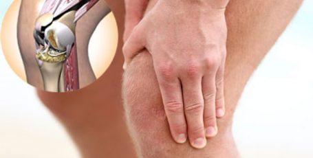 Артрит коленного сустава: симптомы и лечение, причины и виды артрита
