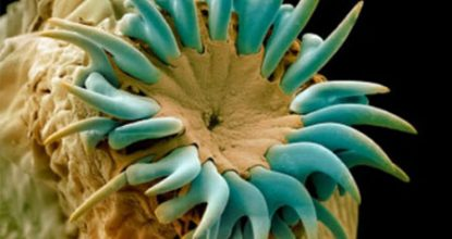 Эхинококкоз: симптомы и лечение, осложнения, профилактика
