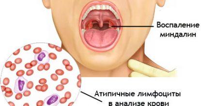 Инфекционный мононуклеоз: симптомы и лечение у детей и взрослых