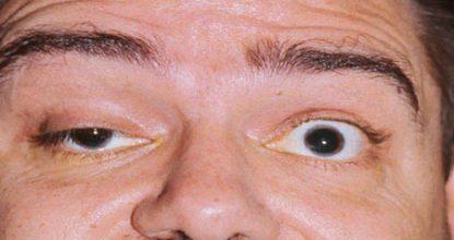 Миастения: симптомы, лечение, причины возникновения и формы болезни