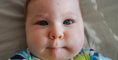 Паротит: симптомы и лечение у детей и взрослых, профилактика