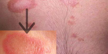 Розовый лишай у человека: симптомы и лечение, фото признаков
