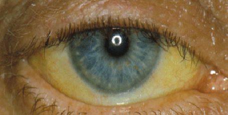 Синдром Жильбера: причины, симптомы и лечение, чем опасен синдром