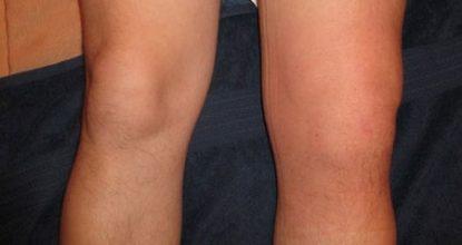 Синовит коленного сустава: симптомы, лечение, формы синовита